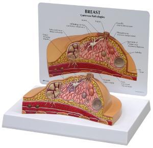 GPI Anatomicals® Basic Breast Cross Section Model