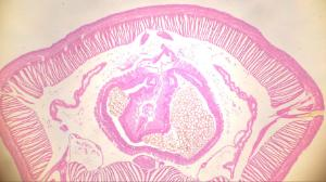 Earthworm, Intestinal Region