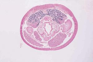 Earthworm, Composite/Three Levels Slide