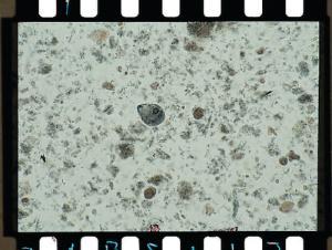 Entamoeba histolytica, Trophozoites Slide