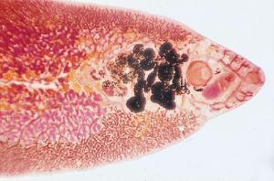 <i>Fasciola hepatica</i>