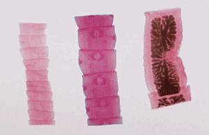 <i>Taenia Pisiformis</i>, Cat/Dog Tapeworm, Composite Slide