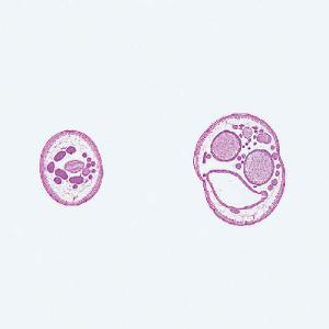 Ascaris lumbricoides- Male and Female