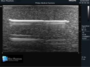 Foreign body identification ultrasound training model