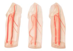 True anatomy series sclerotherapy vascular leg model