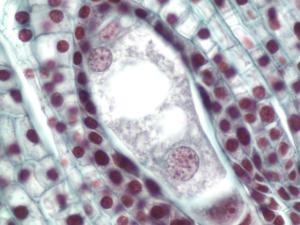 Lilium Ovary, Eight-Nucleate Embryo Sac Slide