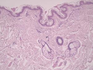 Axillary Skin Slide