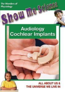 Show Me Science Audiology - Cochlear Implants