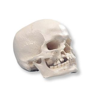 3B Scientific® Skull With Cleft Jaw And Palate