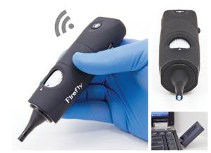 Firefly Digital Video Otoscope