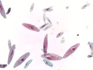Paramecium, Four Types Slide