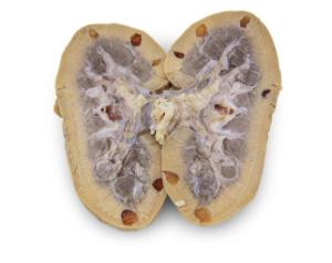 Preserved Pig Kidney with Polycystic Kidney Disease