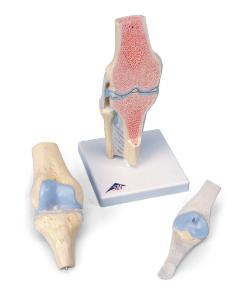 3B Scientific® Sectional Knee Joint, 3 Part