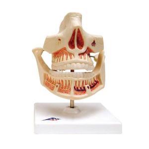 3B Scientific® Denture Models