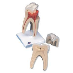 3B Scientific® Classic Tooth Models
