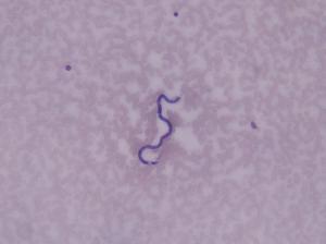 Loa-Loa, Microfilariae Slide