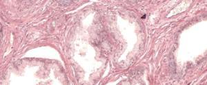 Prostate, Human Slide