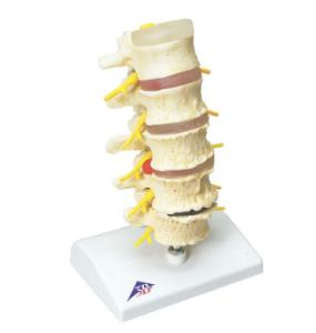 3B Scientific® Stages of Disc Prolapse and Vertebral Degeneration