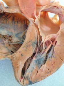Plastinated Pig Heart