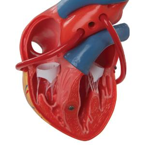 Classic Heart with Bypass