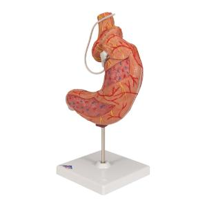 Gastric Band Model