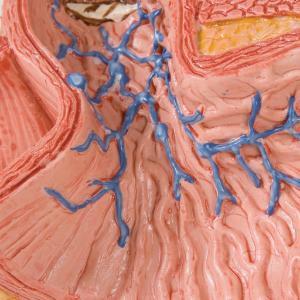 Eosphagus Diseases
