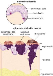 Science Take-Out® A Case Of Skin Cancer