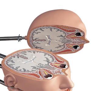 MRI Torso 15 Transverse