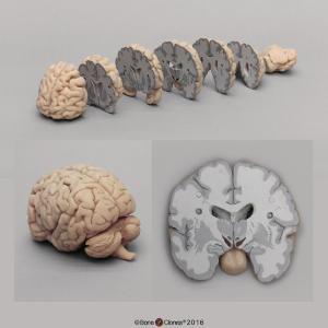 BoneClones® Sectioned Brain Model