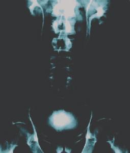 Ward's® Awesome Anatomy Medical Imaging Activity