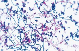 Mixed Bacterial Morphologies