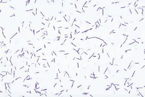 <i>Clostridium botulinum</i>
