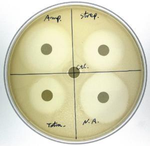 Antibiotic Sensitivity and Bacteria Activity Kit