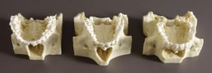 BoneClones® Comparative Maxilla Set
