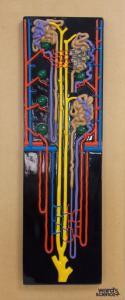 Ward's® Kidney Nephron Model