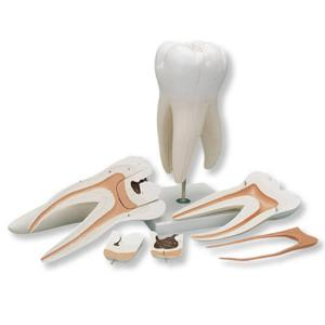 3B Scientific® Giant Molar With Caries