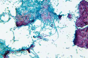 Lichen, Mycobiont Slide