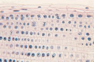 Onion Mitosis Slide, Iron Hematoxylin