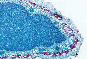 Root Nodules, Legume Bacteria Slide