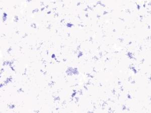 Bacillus, gram (+)