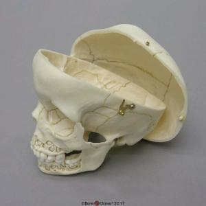 Human Child Skull 5-year-old, Mixed Dentition Exposed and Calvarium Cut