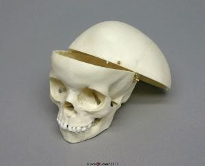 Human Child Skull 5-year-old, Calvarium Cut
