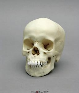 Human Child Skull 9-year-old