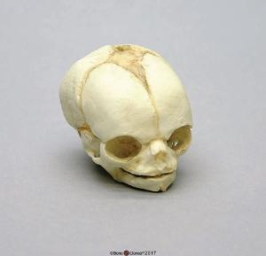 Human Fetal Skull 21 1/2 Weeks