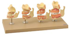 Eisco® Dentition Development Set