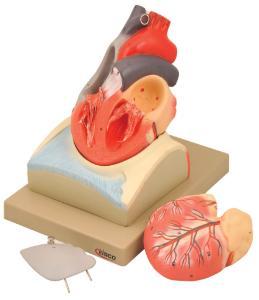 Eisco® Heart On Diaphragm