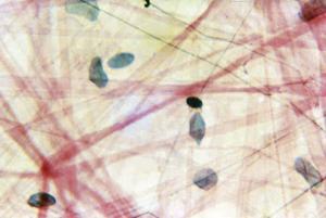 Areolar Tissue
