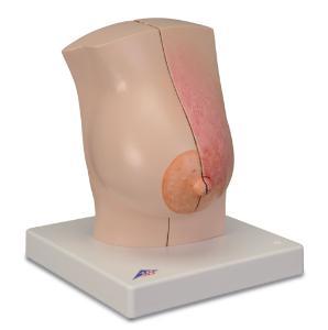 3B Scientific® Model Of The Femalebreast