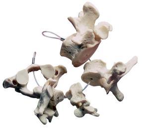 Collection of Vertebrae Model