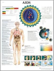 3B Scientific® Aids Chart